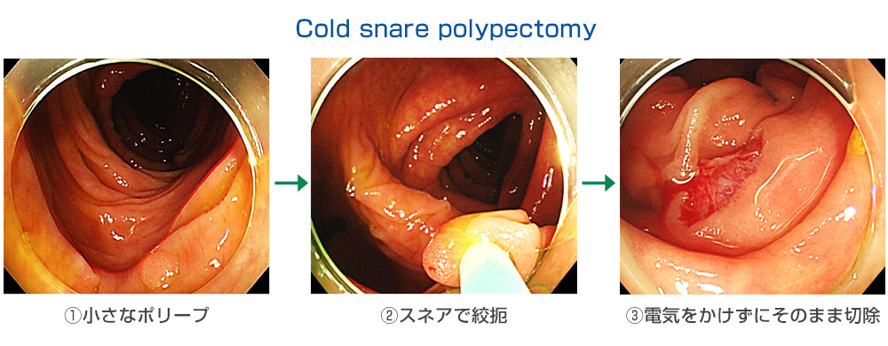 Cold snare polypectomy